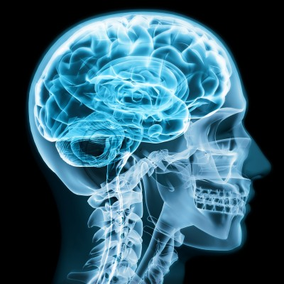 Sex Question Friday: What Does a Gay Brain Look Like?